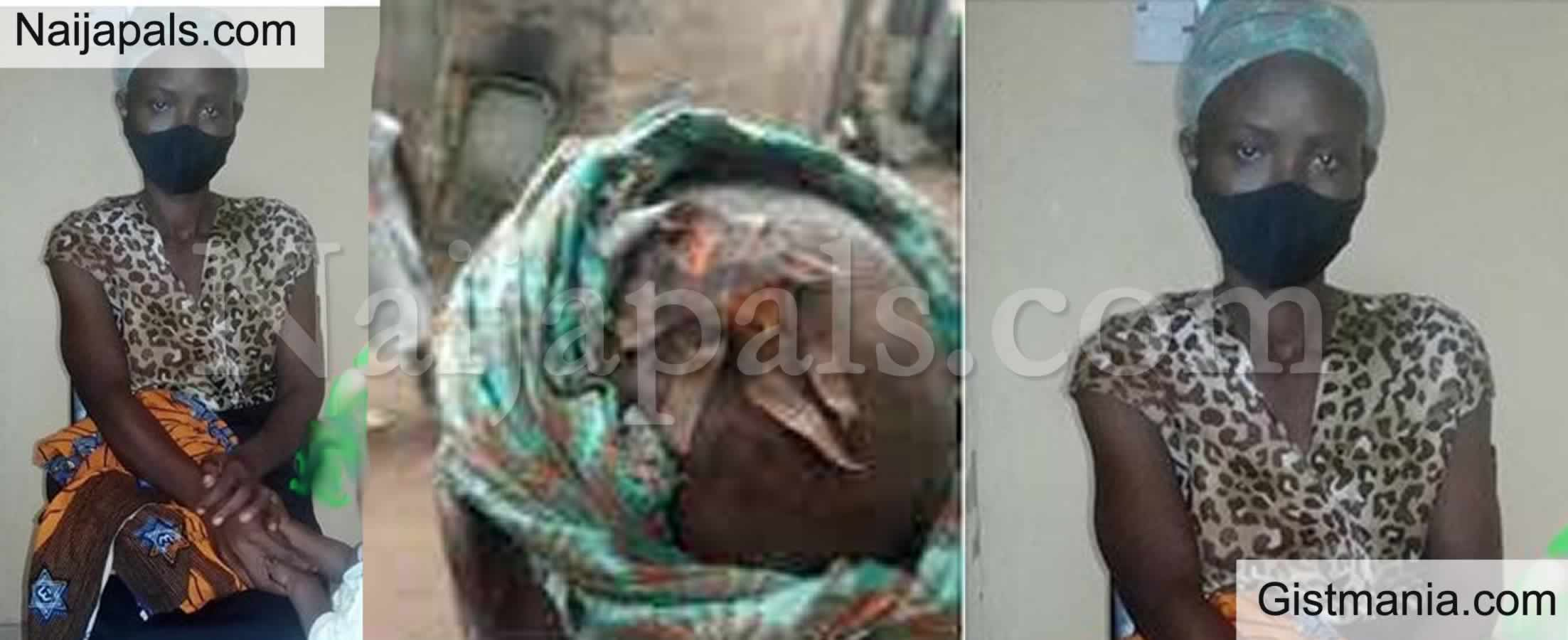 Unbelievable as Abusive Husband Abandons Wife after breaking her head. A woman, identified as Mrs. Chiamaka Okechi